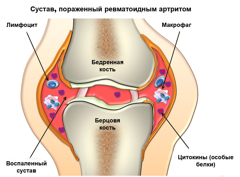 Ревматоидный артрит сустава