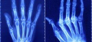 Сравнение больной и здоровой руки