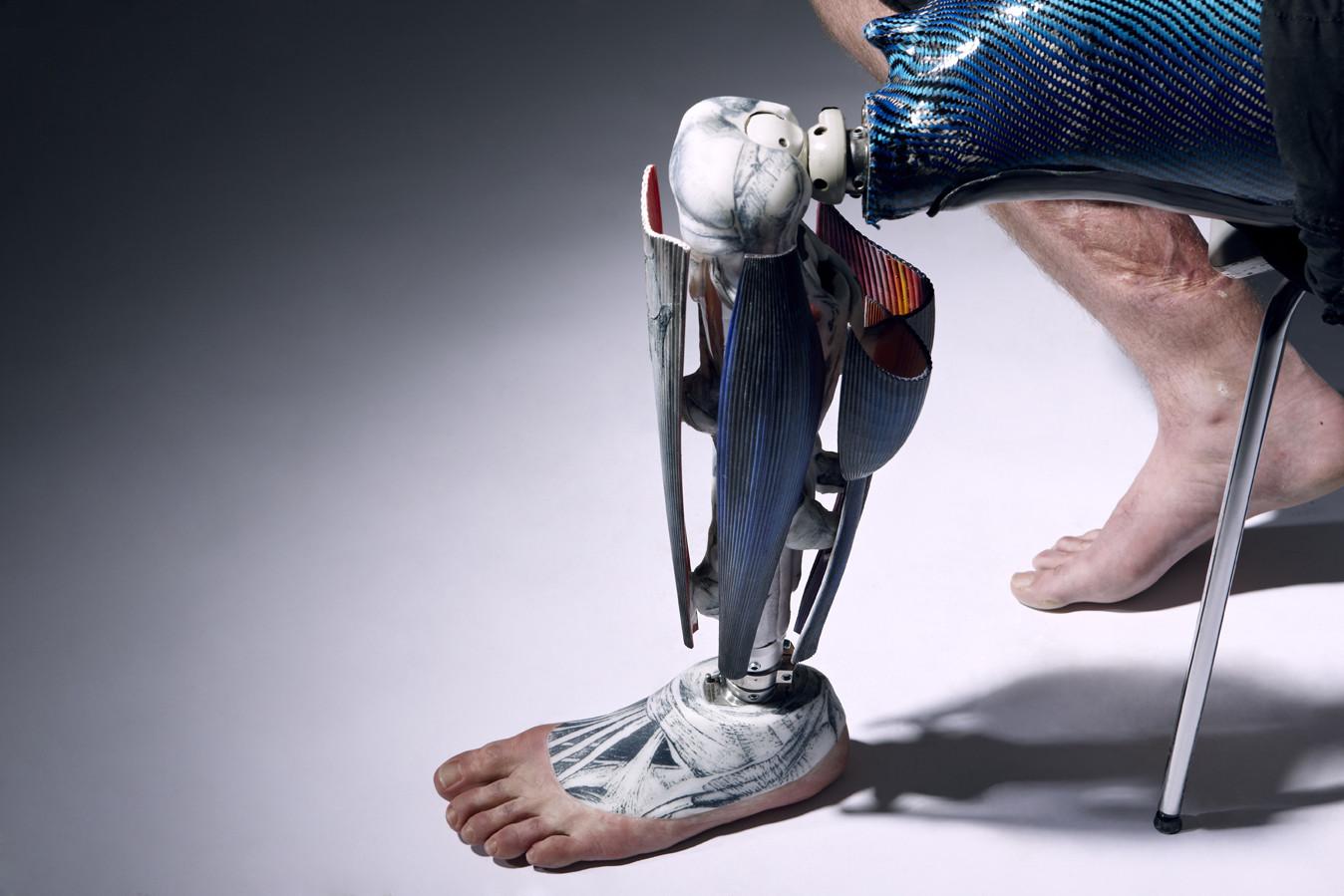 Механические протез ноги