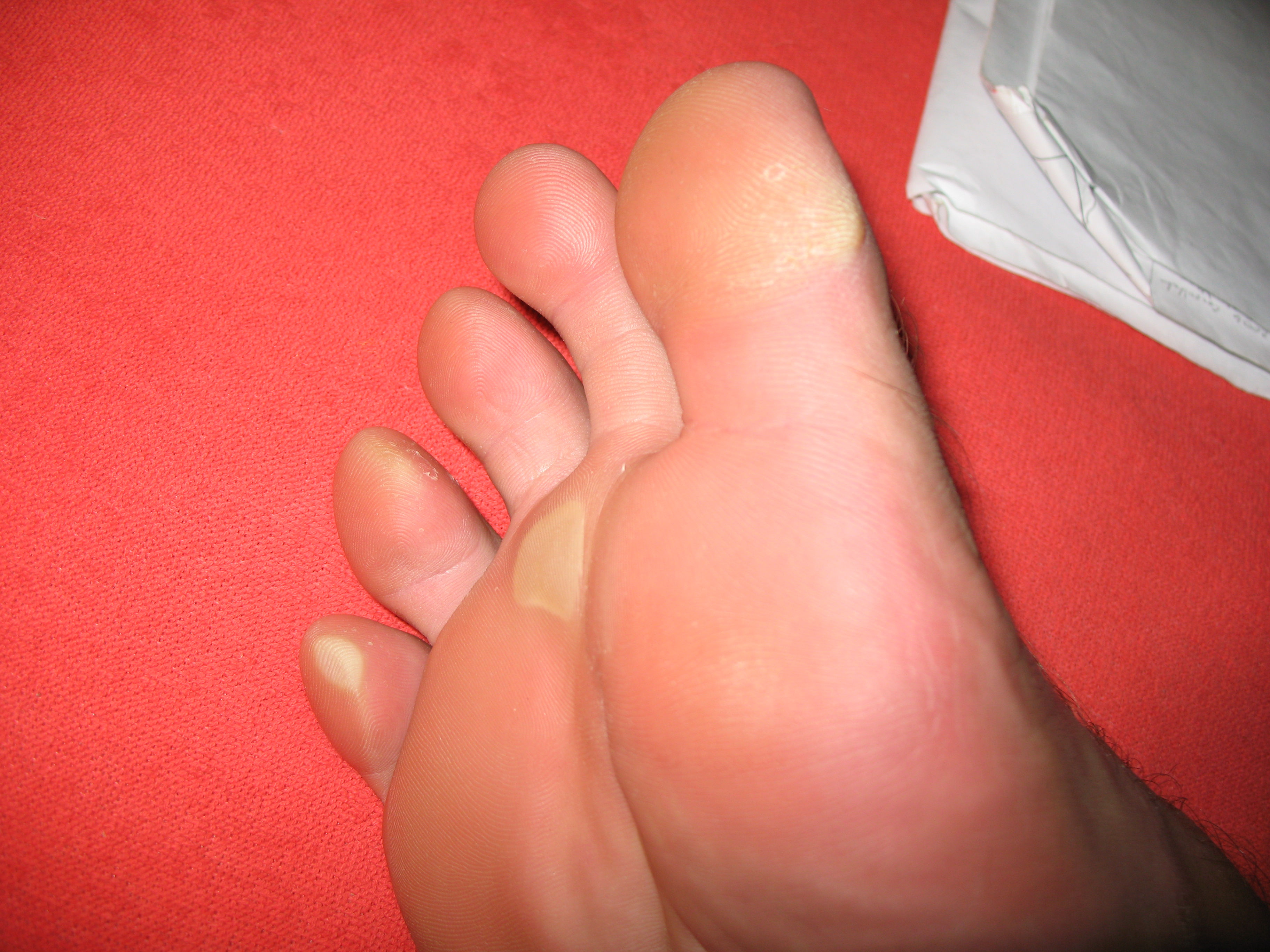 Ноги с сухими мозолями
