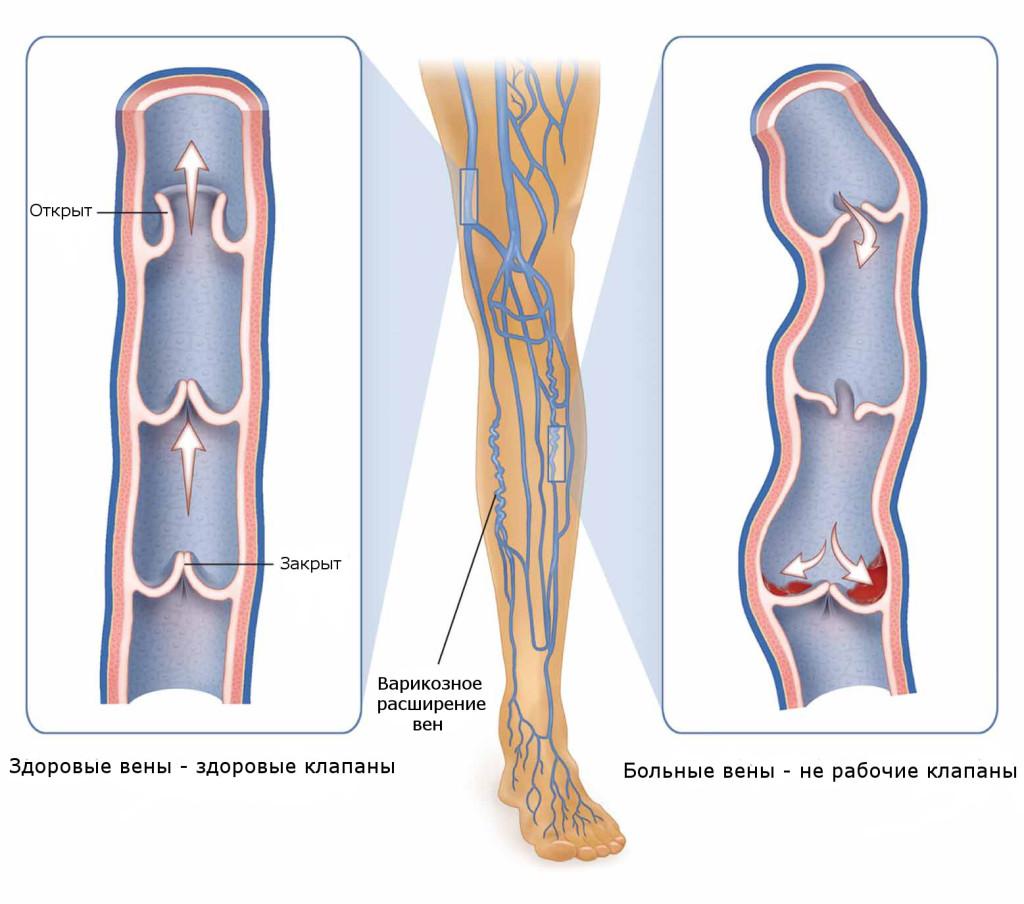 Сосуды ног при варикозе