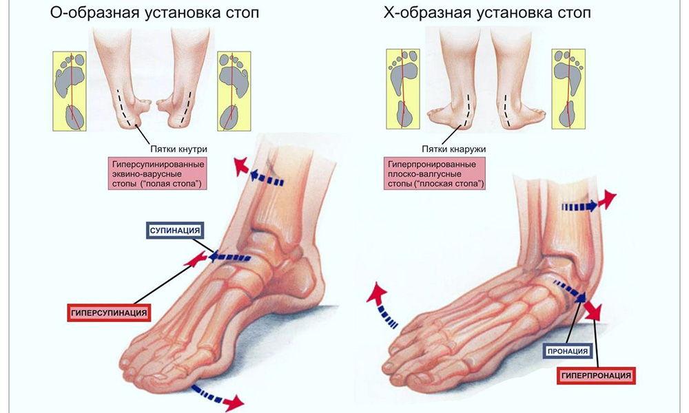 Боль при ходьбе при плоскостопии