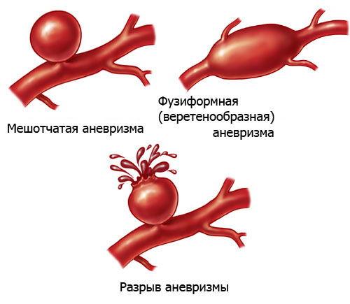 Варианты аневризмы