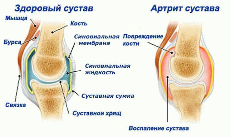 Анализ состояния сустава