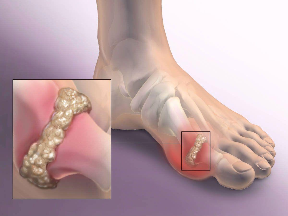 Артроз сустава большого пальца на ноге