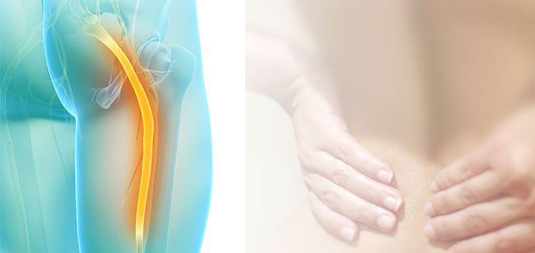 Сдавливание нерва грушевидной мышцей