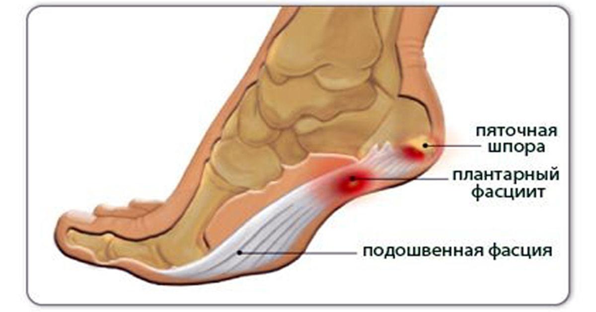 Анатомия стопы при пяточной шпоре