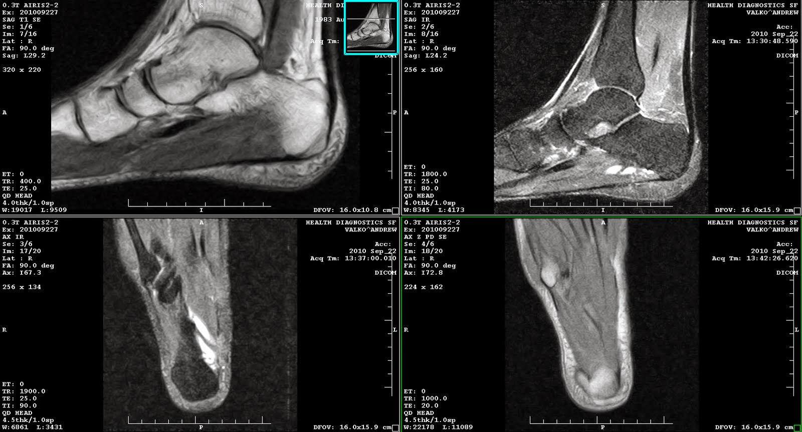 МРТ снимки голеностопа