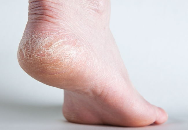 Шелушение кожи стопы