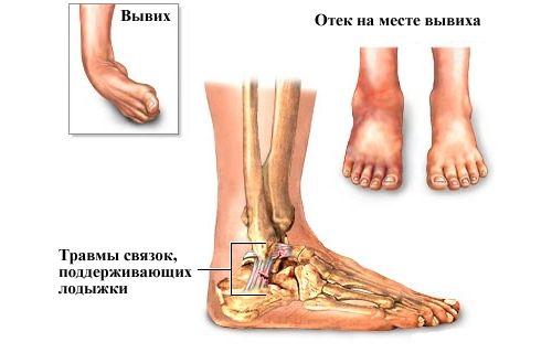 Травма вывих голеностопного сустава