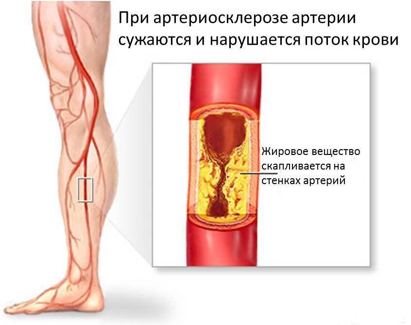 Заболевание сосудов нижних конечностей