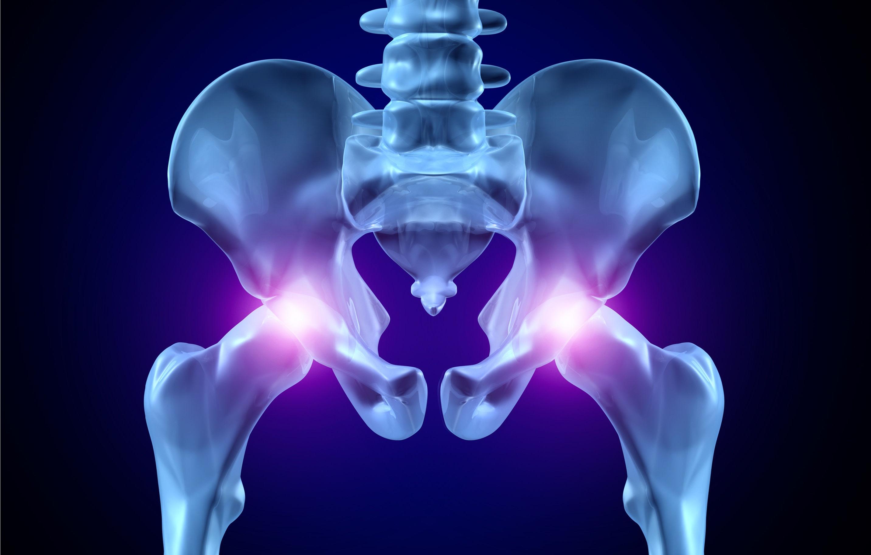 Укрепление суставов таза