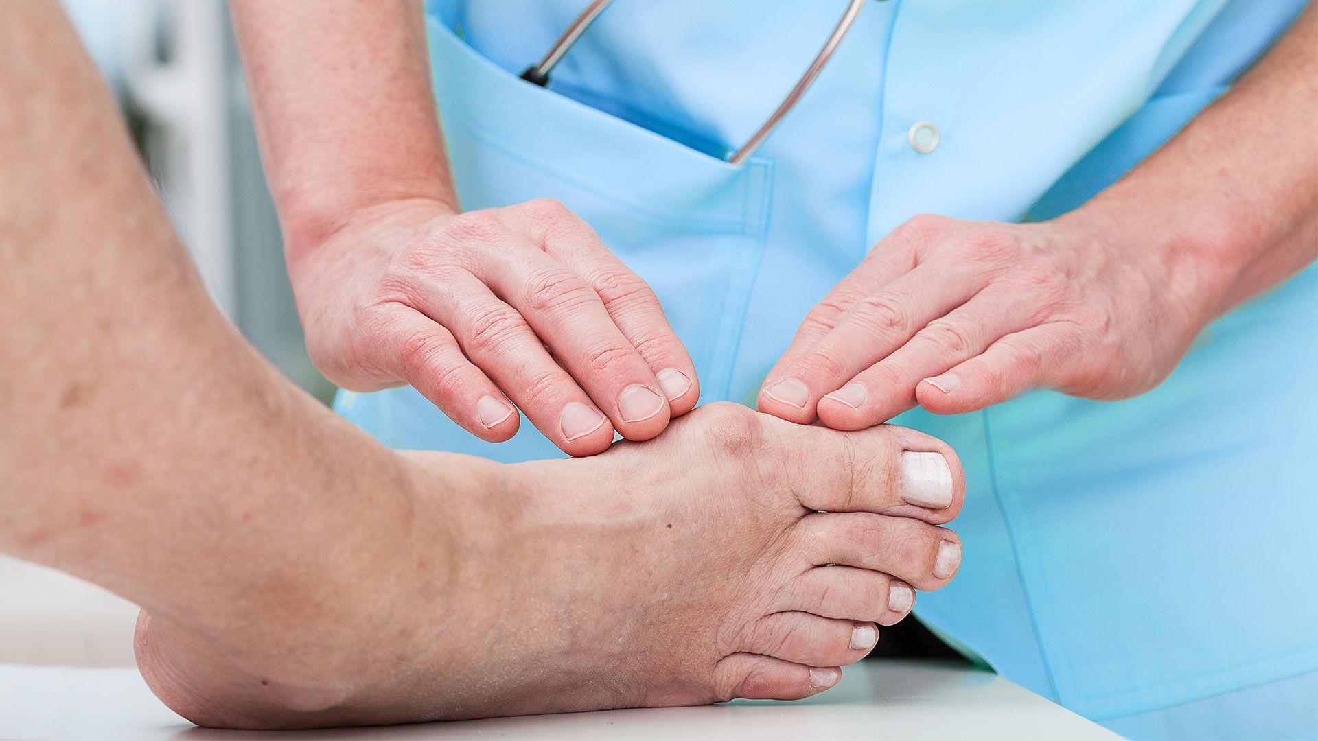 Рост сустава большого пальца