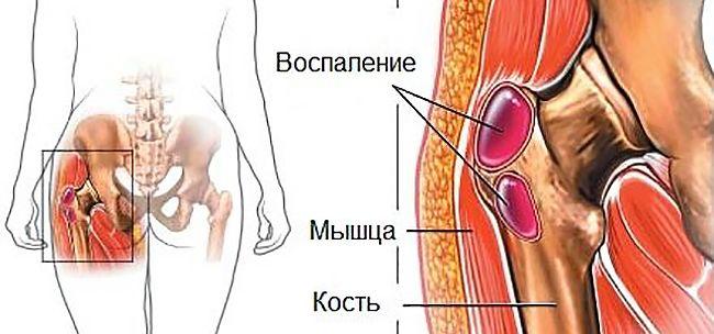 Инфекционное воспаление сустава