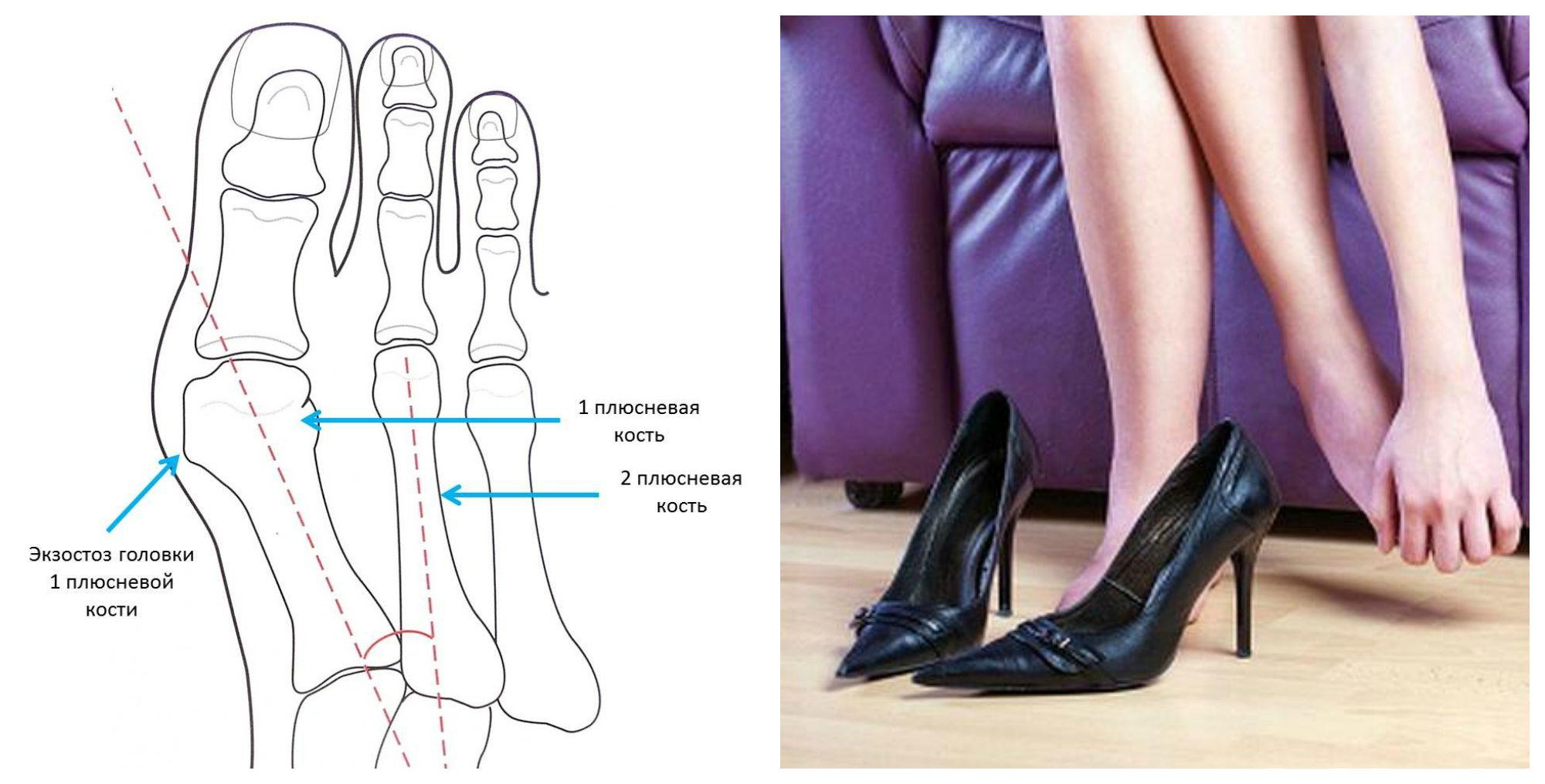 Ношение обуви на высоком каблуке