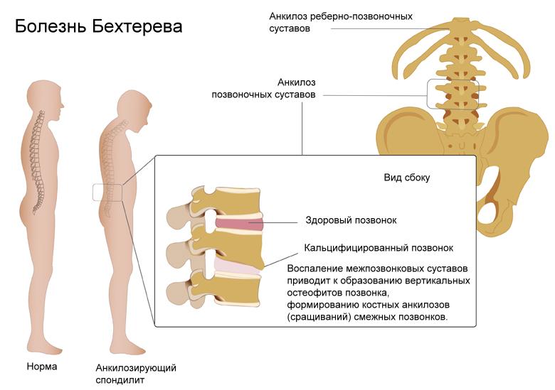Заболевание вызывающее боль в пятке
