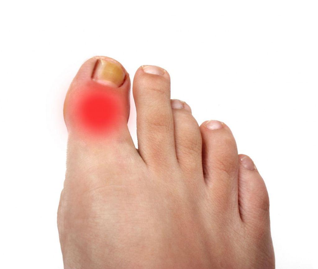 Болит большой палец на ноге