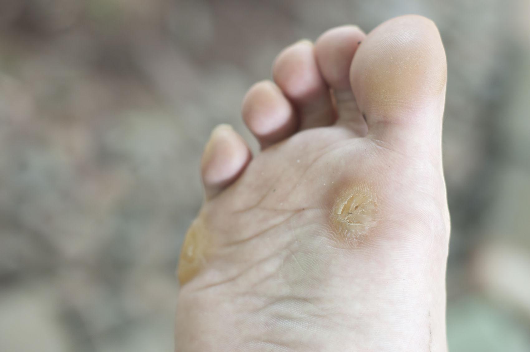 Бородавки на поверхности стопы