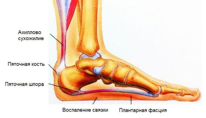 Воспалительное заболевание стопы