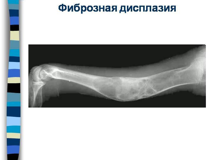 Дисплазия кости