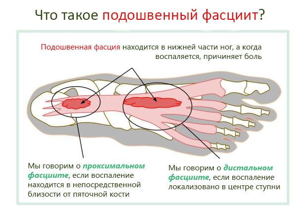 Фасция подошвы ноги
