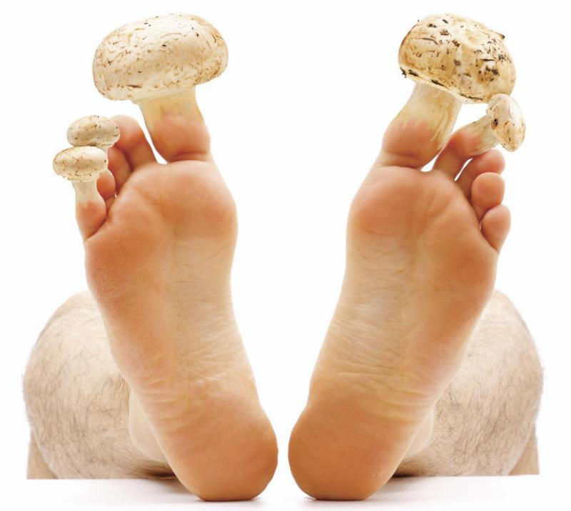 Микозы на ногтях