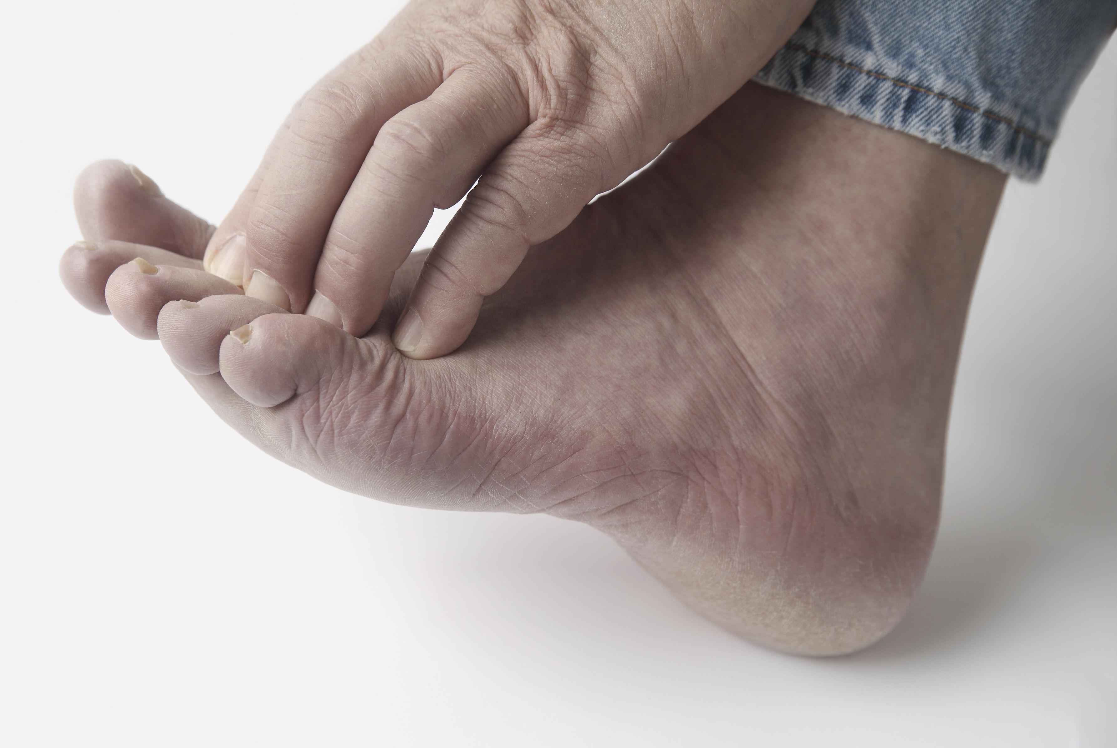 Грибковое заболевание ног