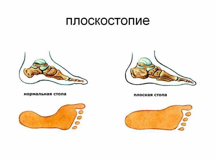 Заболевание плоскостопие