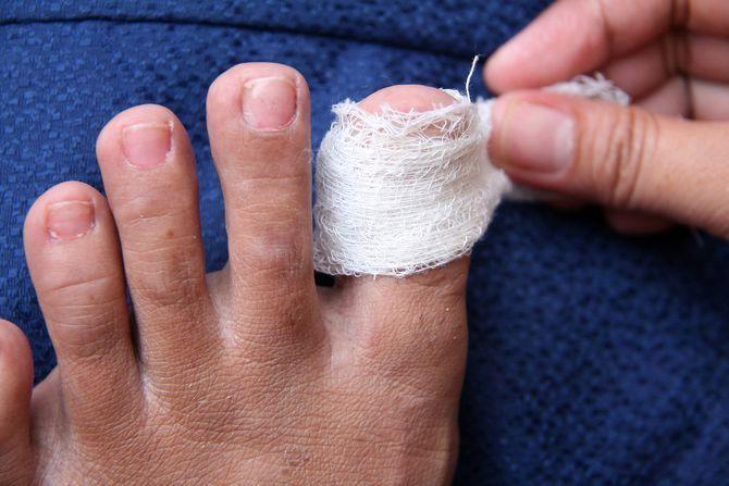 Перевязка ногтя