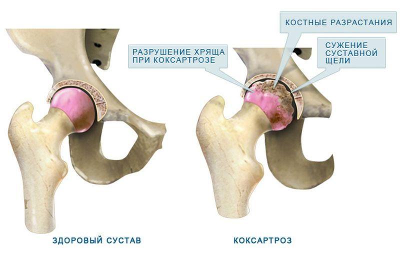 Состояние сустава