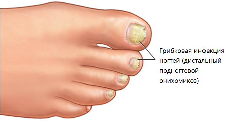 Грибок на ногтях ноги
