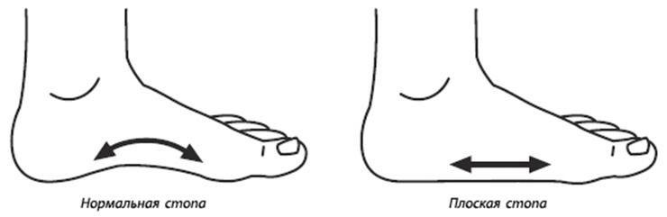 Плоскостопие ног