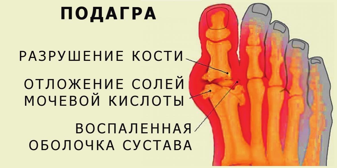 Подагра суставов стопы
