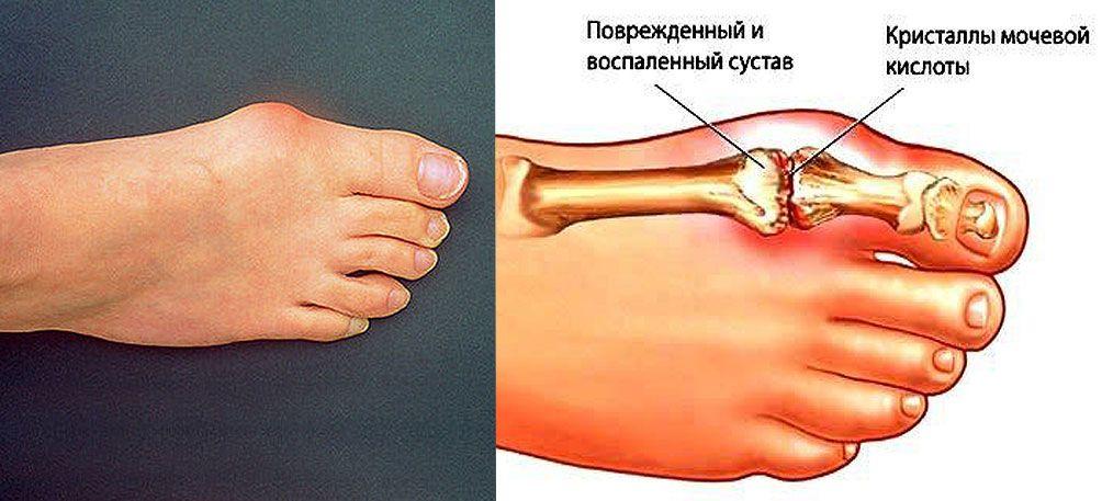 Последствие соли в суставе