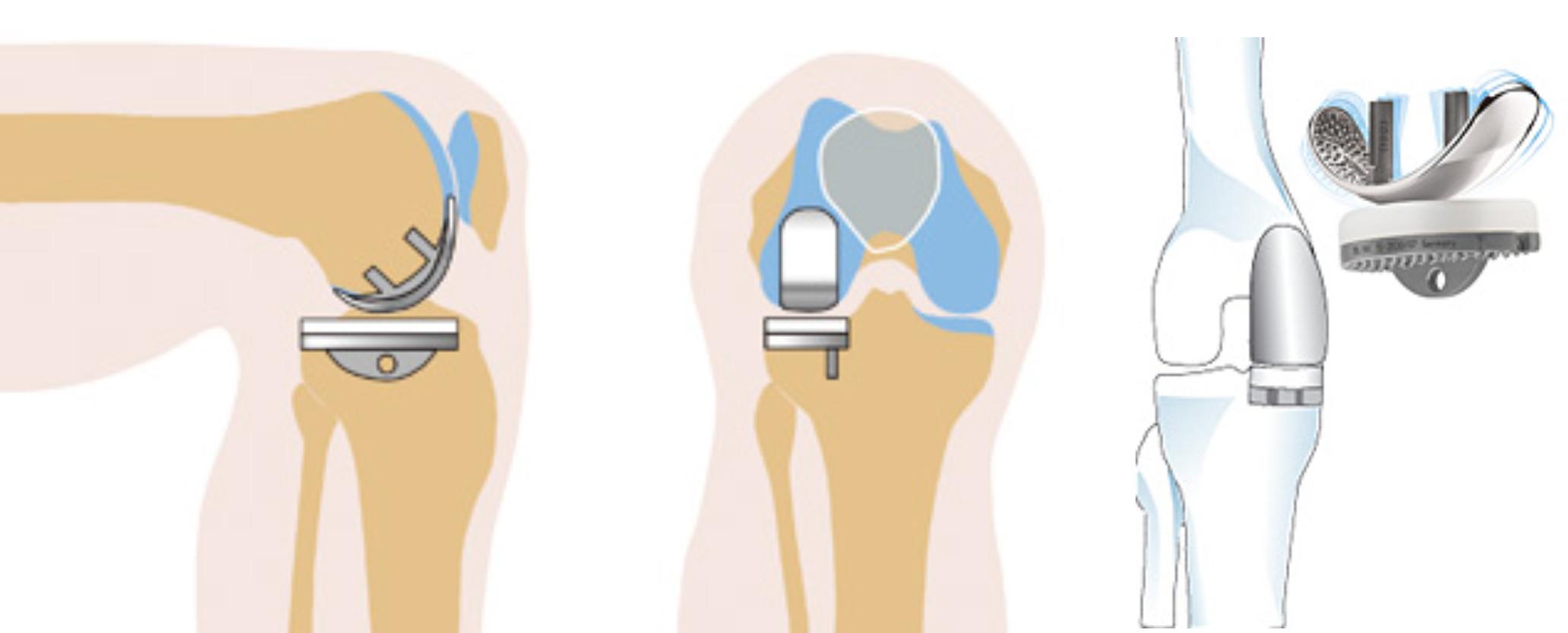 Неполное протезирование колена