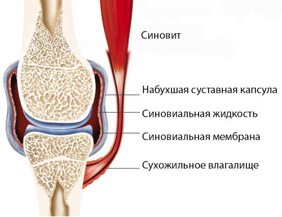 Воспаление в коленном суставе