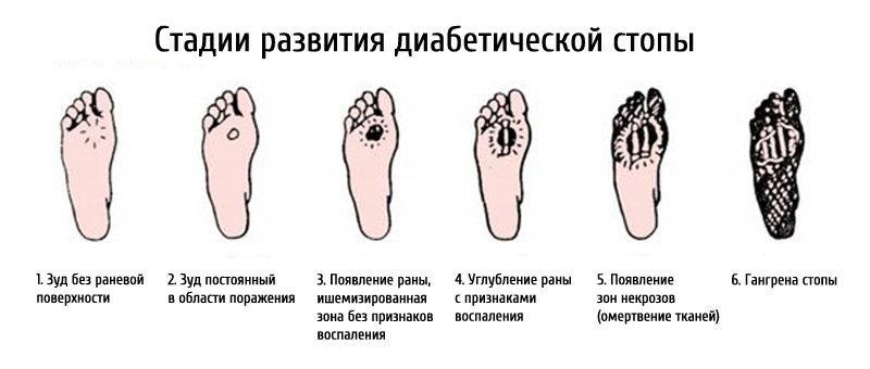 Течение болезни