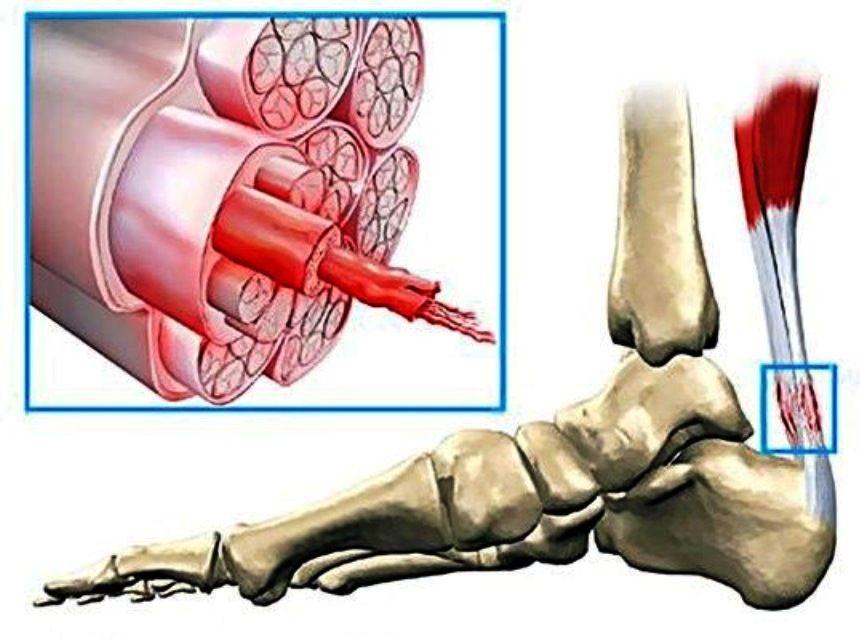 Воспаление сухожилия