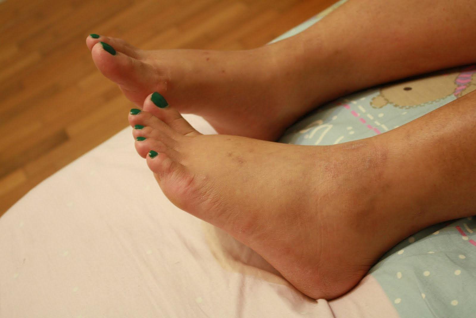 Опухоль одной ноги