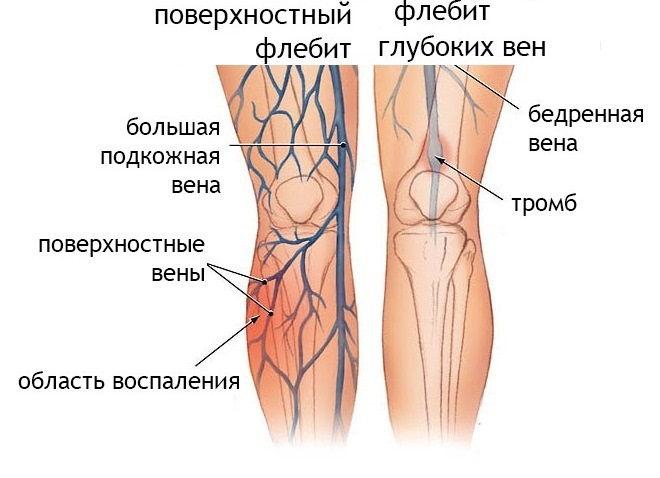 Виды тромбофлебита