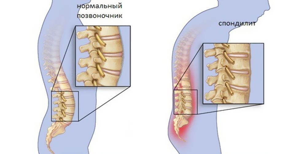 Заболевание спондилит