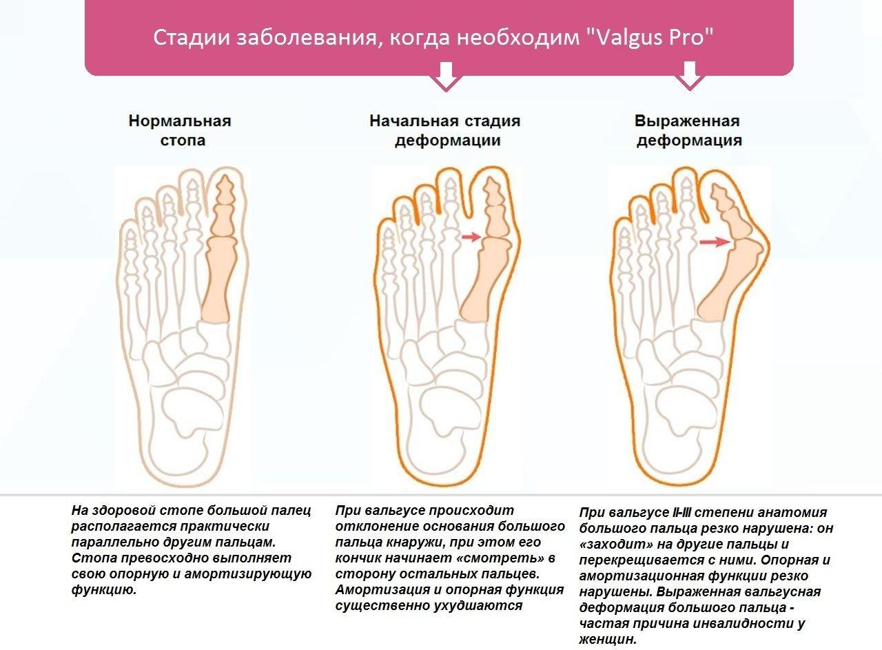 Патологические изменения суставов