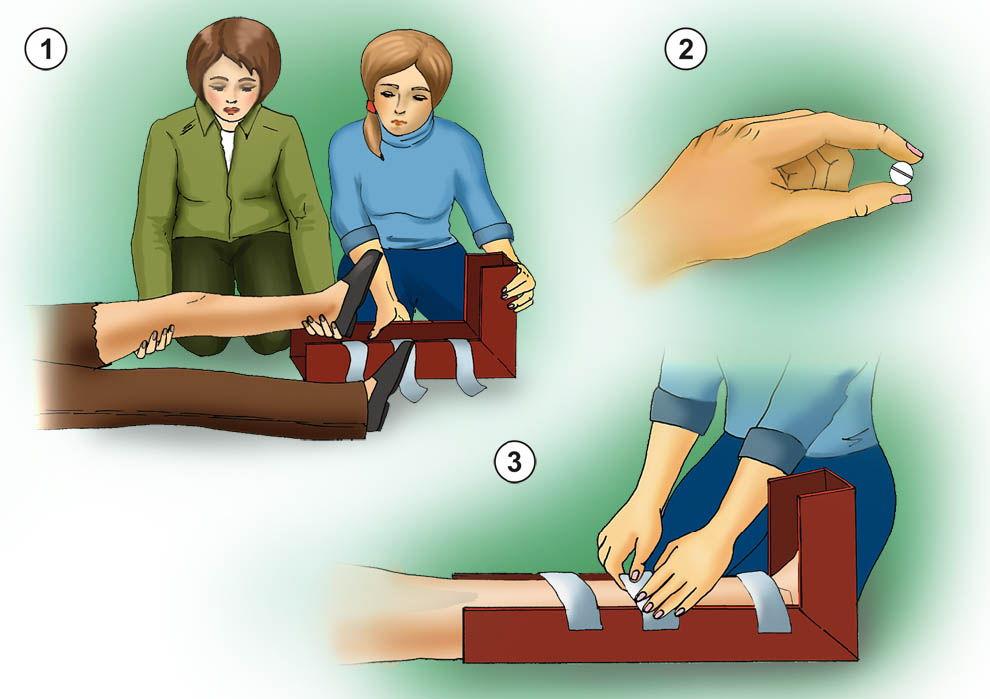 Первая помощь при переломе
