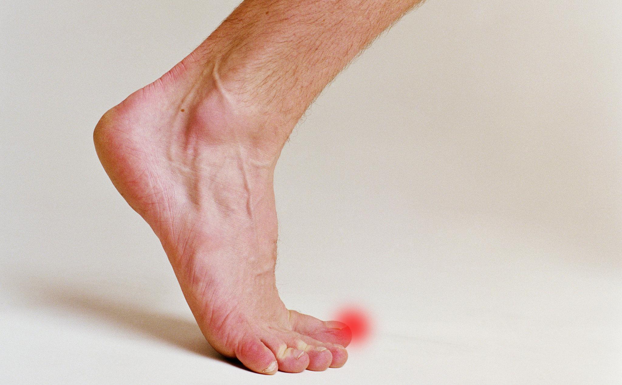Немеет палец на ноге