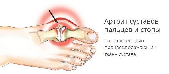 Воспаление при артрите