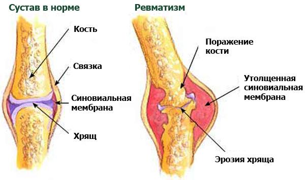Ревматизм в колене