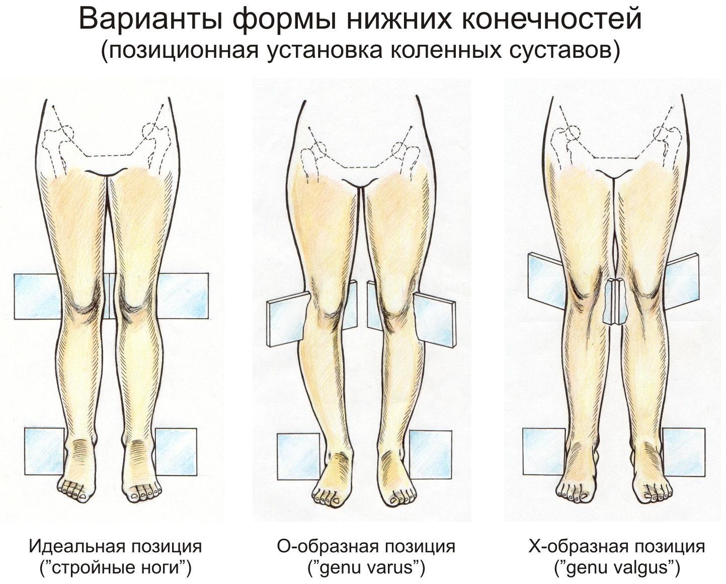 Деформации нижних конечностей