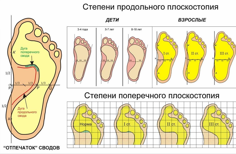 Виды и степени плоскостопия