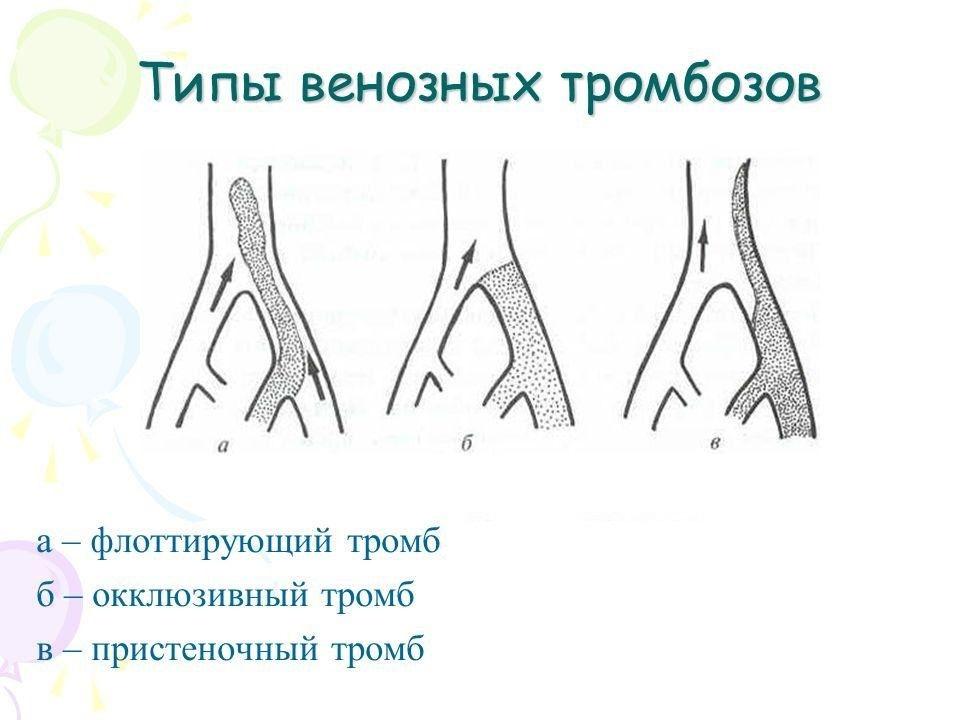 Типы тромбов