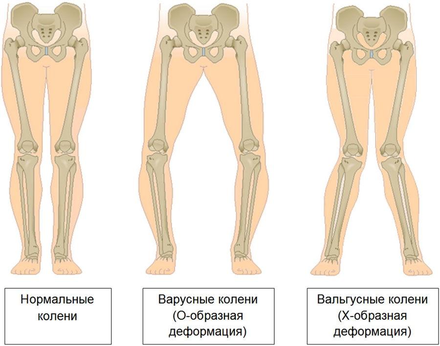 Положение костей